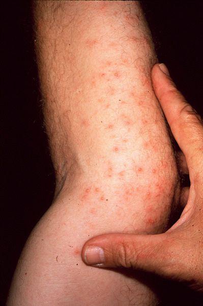 Lyme disease in humans - photo#34