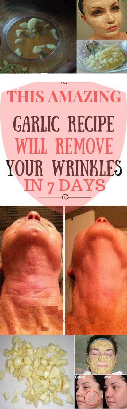 The Amazing Garlic Paste Remove Wrinkles and Black Heads in a Week – Health Tips