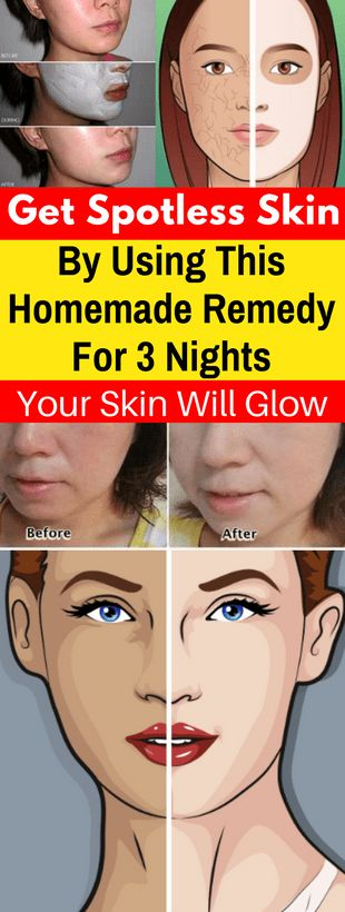 Get Spotless Skin By Using This Homemade Remedy For 3 Nights! Your Skin Will Glow -