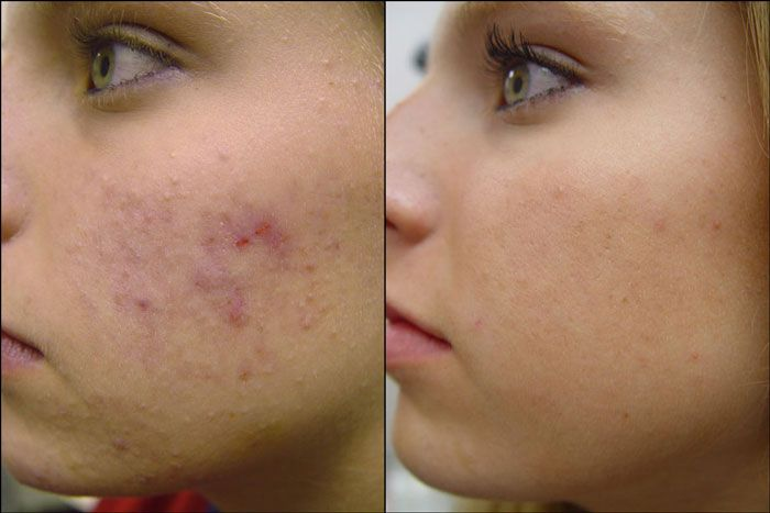 Acne treatments with Agera www.spabannockburn.co.uk