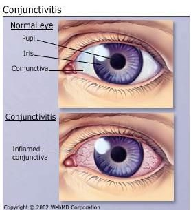 Home Treatment For Conjunctivitis - http://www.medimiss.net/2013/04/home-treatment-for-conjunctivitis.html