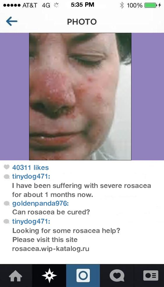Triamcinolone For Rosacea 092529 - Rosacea. You have nothing to lose! Visit Site Now.