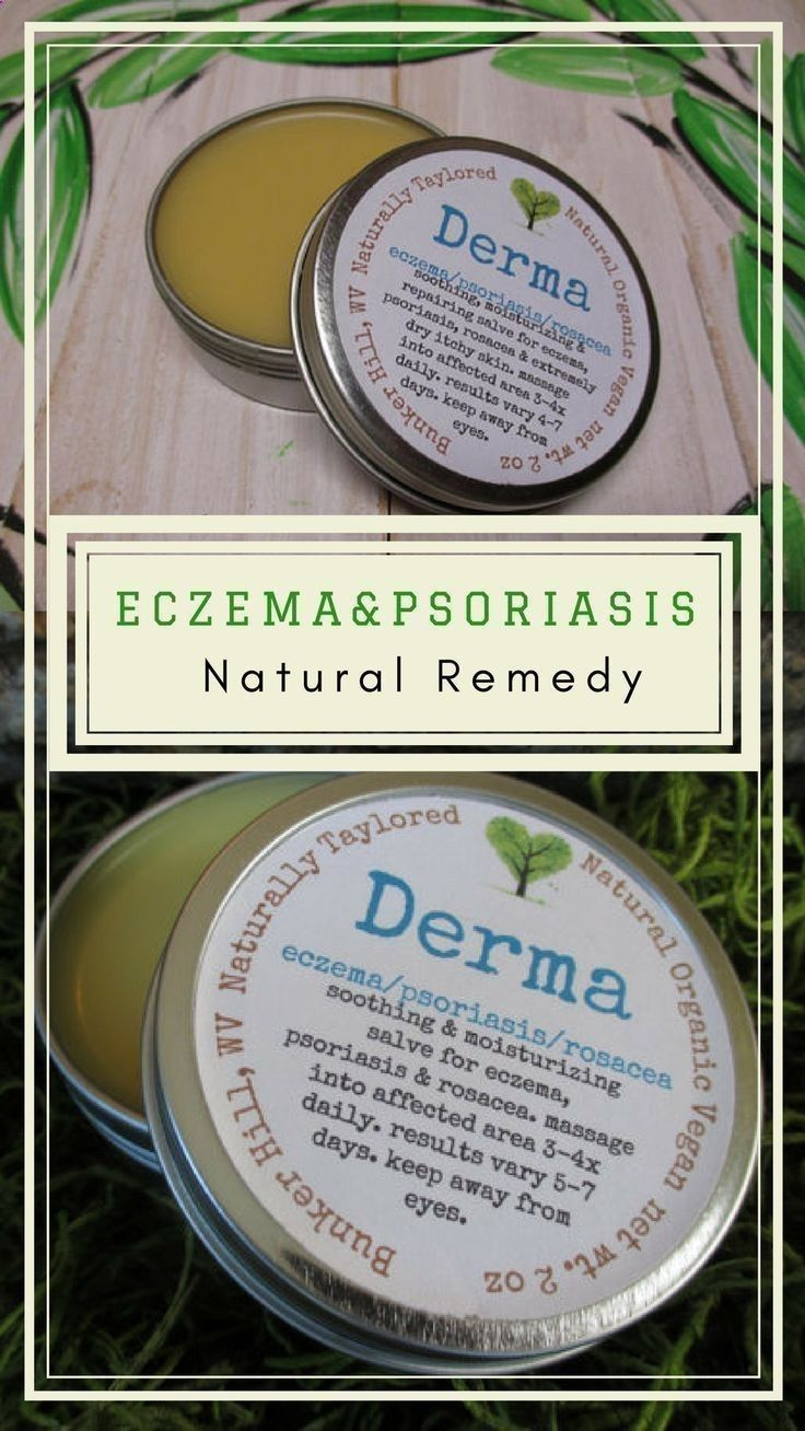 Psoriasis Diet - Natural Remedy for Eczema and Psoriasis. #Eczema#Cream #Psoriasis #Salve #NaturalEczema #Psoriasis #NaturalRemedy #Natural #Rosacea#etsy#skincare#skincareproducts#ad REAL PEOPLE. REAL RESULTS 160,000+ Psoriasis Free Customers #naturalpsoriasisremedies