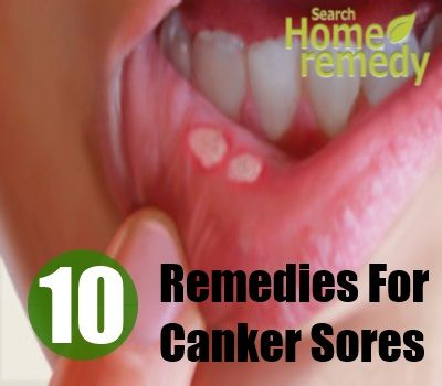 https://s-media-cache-ak0.pinimg.com/736x/ac/37/68/ac3768a025751c50113c1815ef0df05c.jpg Canker Sore In Throat Remedy