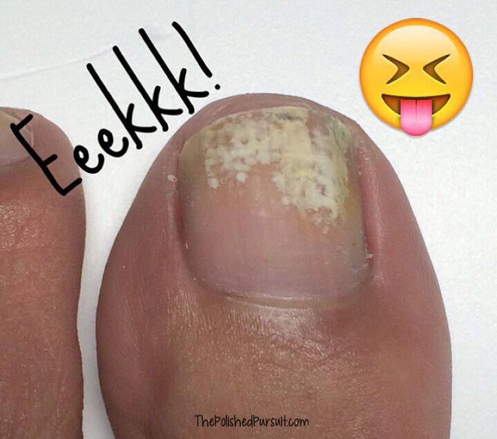 How To Remove White Marks On Toe Nails The Polished Pursuit Toe Nails White White Patches On Toenails White Toe Nail Polish