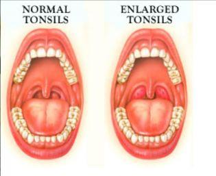 Treating Enlarged Tonsils Naturally