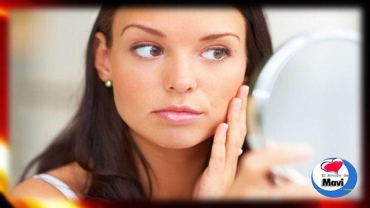 Remedios caseros para cerrar los poros abiertos o dilatados  #Nutrición y #Salud YG > nutricionysaludyg.com
