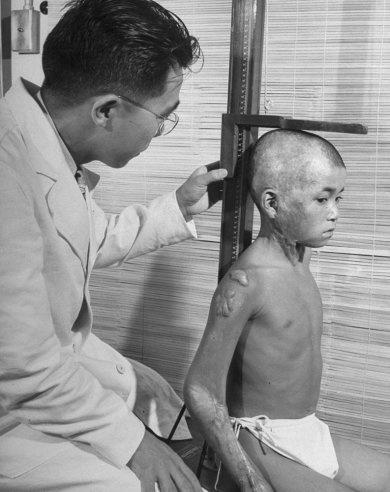Hiroshima Japan 1949, atomic bomb survivor | After Hiroshima: Portraits of Survivors | LIFE.com
