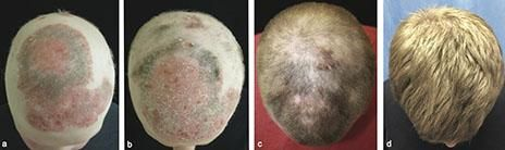 Using an arthritis drug, doctors have restored hair growth in a 25-year-old man left bare of body hair from the uncommon disease alopecia universalis.