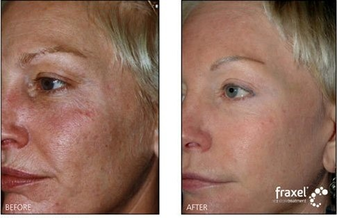 Fraxel Before And After For Refining And Perfecting The