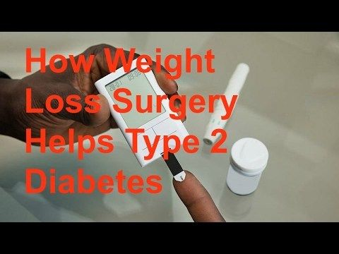How Weight Loss Surgery Helps Type 2 Diabetes - WATCH VIDEO HERE -> http://bestdiabetes.solutions/how-weight-loss-surgery-helps-type-2-diabetes/      Why diabetes has NOTHING to do with blood sugar  *** fasting before surgery diabetes ***  How Weight Loss Surgery Helps Type 2 Diabetes Urgent diabetes health bulletin here.. ################### JOIN US ######################### Subscribe now! For more new health videos coming up...  Why diabetes has NOTHING to do with blood