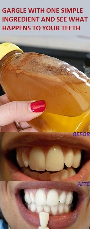 GARGLE WITH ONE SIMPLE INGREDIENT AND SEE WHAT HAPPENS TO YOUR TEETH