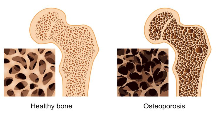 Fish oil containing EPA (eicosapentaenoic acid) and GLA (gamma linolenic acid) is one of the best natural way to treat Osteoporosis.