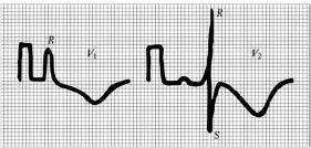 Гипертрофия (перегрузка) правого желудочка. Пояснения в тексте