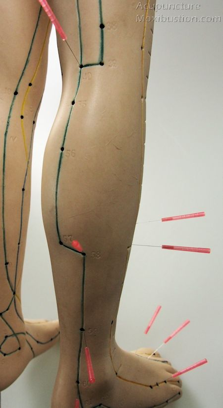 Leg Acupuncture Points for Sciatica and Lower back pain: One to three points are chosen based on pain distributions, point palpation and findings from physical examinations such as deep tendon reflexes and muscle testing.  http://www.acupuncturemoxibustion.com/acupuncture-points/sciatica-points/