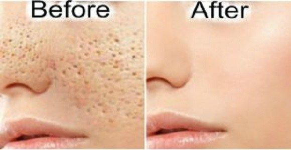 Pores are small openings on the skin which allow it to breathe. They are almost impossible to be seen with the naked eye, but may grow in si...