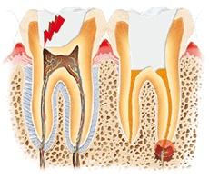 Gráficos explicativos de las principales causas de dolor dental