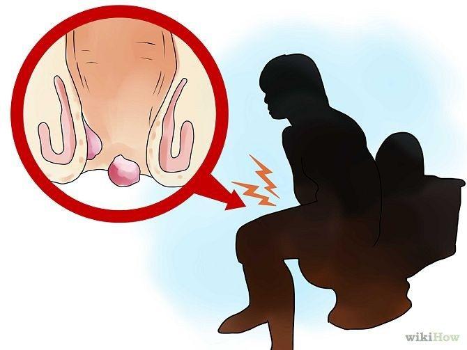 Si alguna vez has notado que sufres de hemorroides, entonces usted sabe lo incómodo que
