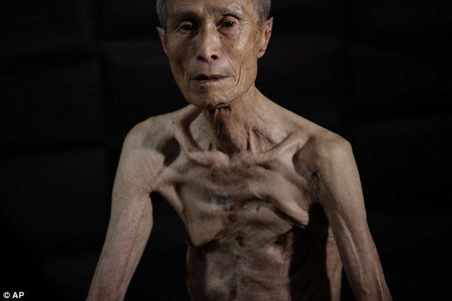 Japanese pensioner reveals horrifying scars 70 years after Nagasaki #dailymail