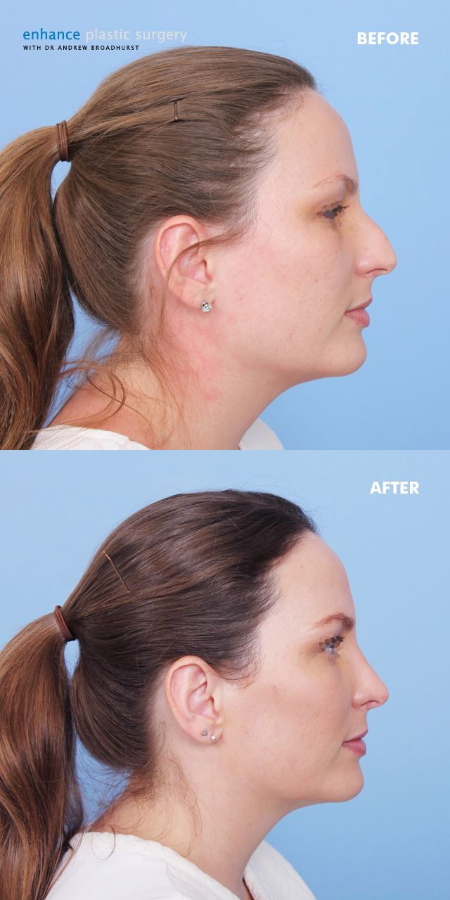 17 best images about nose jobs rhinoplasty surgery rhinoplasty removing this patient s nasal hump made a significant difference to her facial balance
