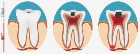 Abscessed Tooth Treatment and Pain Relief Home Remedies: An abscessed tooth is a dental condition in which the nerve of the tooth, also referred to as the dental pulp, has become infected. Multiple best practiced natural remedies is discussed and suggested below to treat abscessed tooth and to help you get rid of pain caused from it.