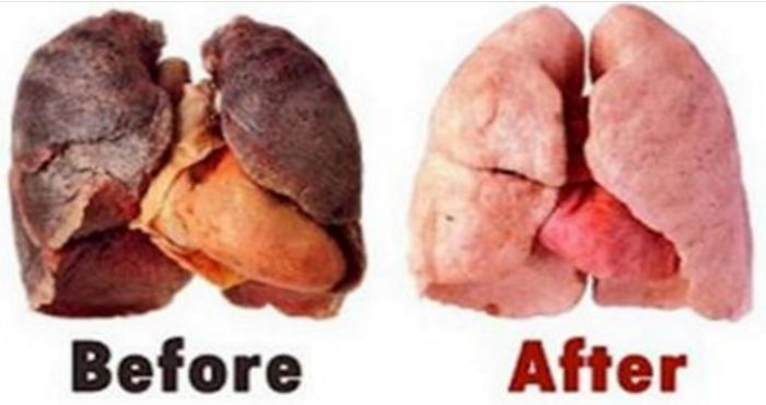 Incredible: This home remedy frees your lungs from harmful toxins!