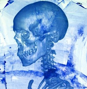 """""""Studies of a Skull""""- 60 degree left View, Size: 60 x 60 cm. http://traffordparsons.com/products-page/all/studies-of-a-skull-60-degree-left-view-limited-edition-screen-print/"""
