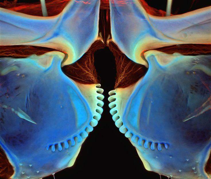 <p>Dr. Igor Siwanowicz, Instituto Médico Howard Hughes (HHMI), Campus de Investigación Janelia, Ashburn, Virginia, Estados Unidos. Patas traseras de ninfa fulgoromorfa acoplándose. Microscopio confocal. 250x</p>