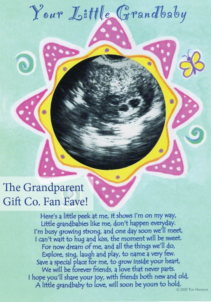 50 best baby gender reveal images on pinterest baby gender an ultrasound gift expectant grandparents will love this not a dry eye in the negle Images