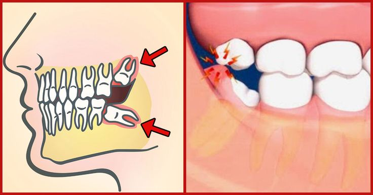It pains like crazy when the wisdom tooth appears and the bad news is that it really has nothing to do with wisdom. Check out these effective remedies that would work effectively to reduce the pain