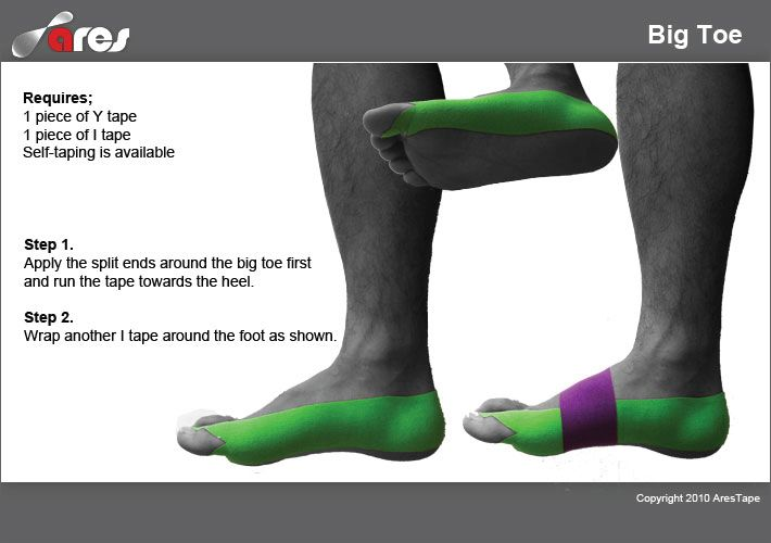 See our complete selection of Ares products at: http://www.theratape.com/brand/ares-kinesiology-tape.html