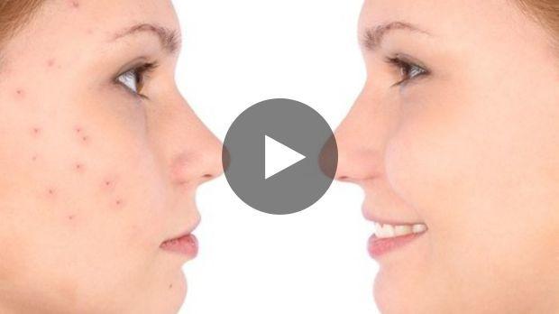Zur Behandlung von Akne kennt man die üblichen Produkte oder Medikamente zur Einnahme