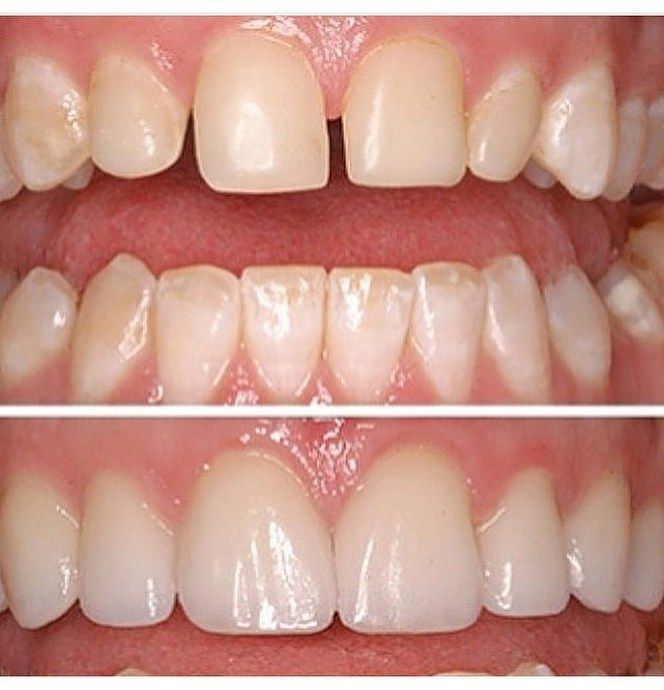 #Porcelain #dental #veneers on six upper anterior #teeth Before and After #cosmetic #dentistry #dental #care #beautiful #smile #Beirut #Lebanon 03012007 by hollywoodsmilemaster Our Dental Veneers Page: http://www.lagunavistadental.com/services/cosmetic-dentistry/veneers/ Other Cosmetic Dentistry services we offer: http://www.lagunavistadental.com/services/cosmetic-dentistry/ Google My Business: https://plus.google.com/LagunaVistaDentalElkGrove/about Our Yelp Page:..