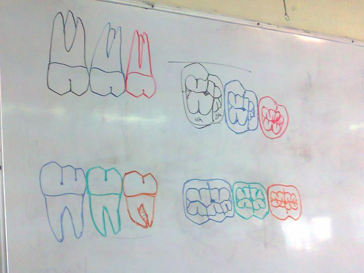 molares maxilares , madibulares and caras oclusales