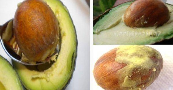 Κουκούτσι Αβοκάντο – Τα Απίστευτα Οφέλη της Υπερτροφής