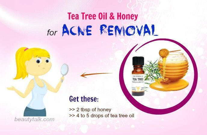 Top 25 Ways How To Use Honey For Acne Treatment – Do They Works?