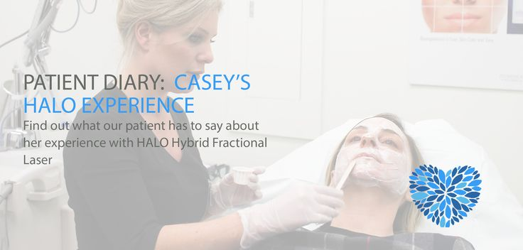Patient Diary: Casey's HALO Experience http://www.fioreskinclinic.ca/patient-diary-caseys-halo-experience/?utm_campaign=coschedule&utm_source=pinterest&utm_medium=Dr.%20Buonassisi%20%7C%20Fiore%20Skin%20Clinic%20and%208%20West%20Cosmetic%20Surgery&utm_content=Patient%20Diary%3A%20Casey%27s%20HALO%20Experience