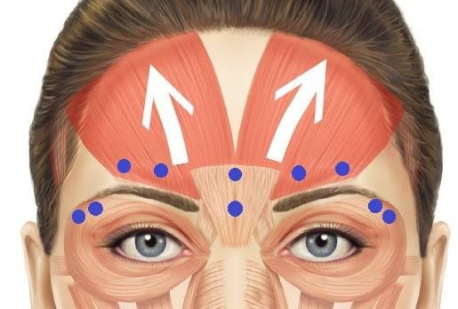 Thinking about a non-surgical eyebrow lift?  The blue dots indicate some of the common injection sites of Botox to lift the brow.