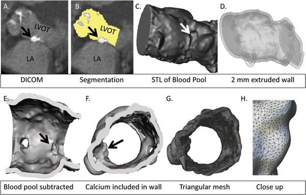 3D printed aortic valves could reduce complications from transcatheter aortic valve replacement