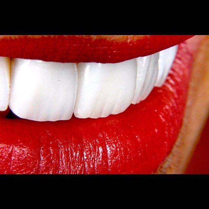 ...O sorriso é a manifestação dos lábios quando os olhos encontram o que o coração procura... ....Style Rildo Lasmar...... #facetasdeporcelana #implantedental #lentesdecontatodental #sorrisos #dentista #estheticdentistry #goiania #esteticadental #odontologia #estetica by rildolasmar http://ift.tt/1qUnYOk