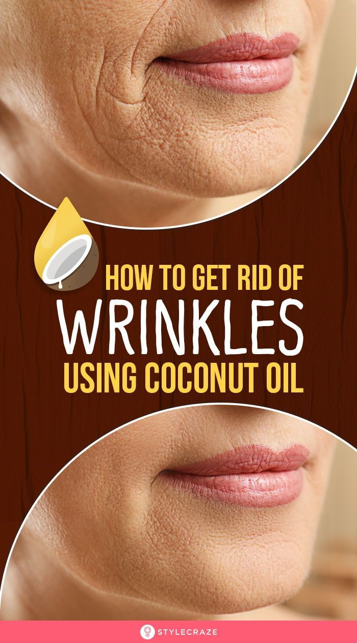 How To Get Rid Of Wrinkles Using Coconut Oil Are You Constantly Worried About The Signs Of Aging On Your Face In 2021 Lip Wrinkles Lip Wrinkle Treatment Face Wrinkles