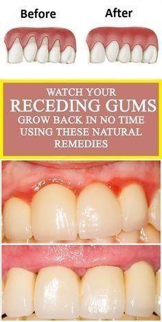 Remedies For Whiter Teeth Make Receding Gums Grow Again ...