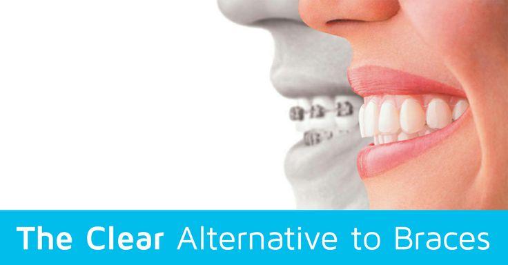 8 best Services images on Pinterest | Braces, Bracelets and Teeth braces