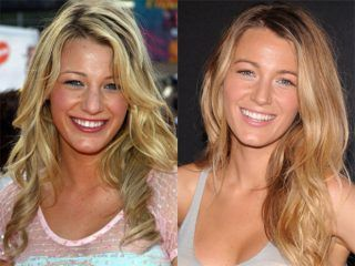 Blake lively before and after plastic surgery | Top Celebrity Surgery