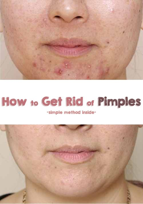 How to Get Rid of Pimples - simple method inside -