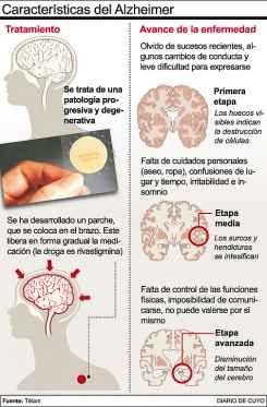Características de la Enfermedad de Alzheimer