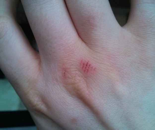 This injury.