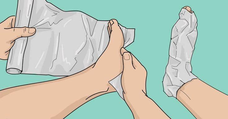 Léčba hliníkovou fólií Vezměte kus alobalu a uvázejtejej na oblast, která vás trápí. Aby fólie držela na svém místě, je dobré ji něčím ovázat. Tento proces opakujte po dobu 10 – 12 dní. Plocha, kterou léčíte by měla být pokryta hliníkovou fólií ve dne i v noci. Po této době si udělejte pauzu a to …