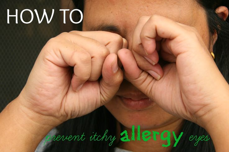Allergy Season is upon us. Here are some ways to avoid itchy allergy eyes. #allergy #allergies #tips