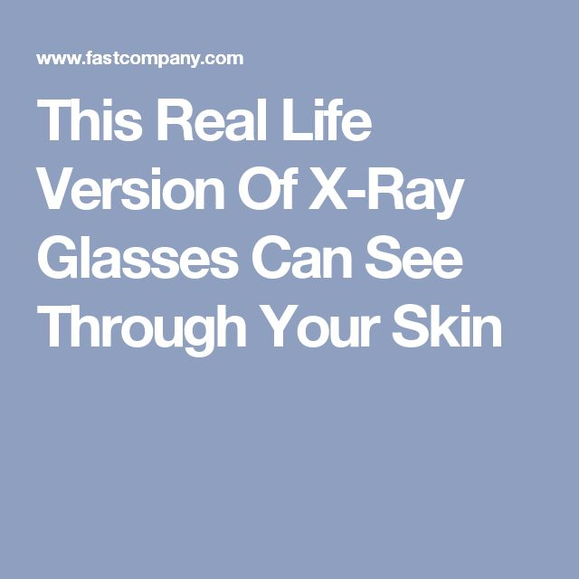 This Real Life Version Of X-Ray Glasses Can See Through Your Skin